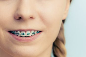Aparelho dentário: vale a pena usar quando adulto?