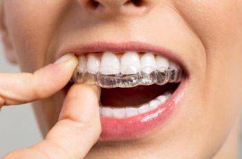 Quais os perigos do clareamento dentário caseiro sem orientação?
