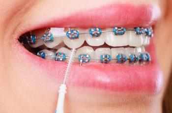 8 dicas de higiene para quem utiliza aparelho ortodôntico fixo