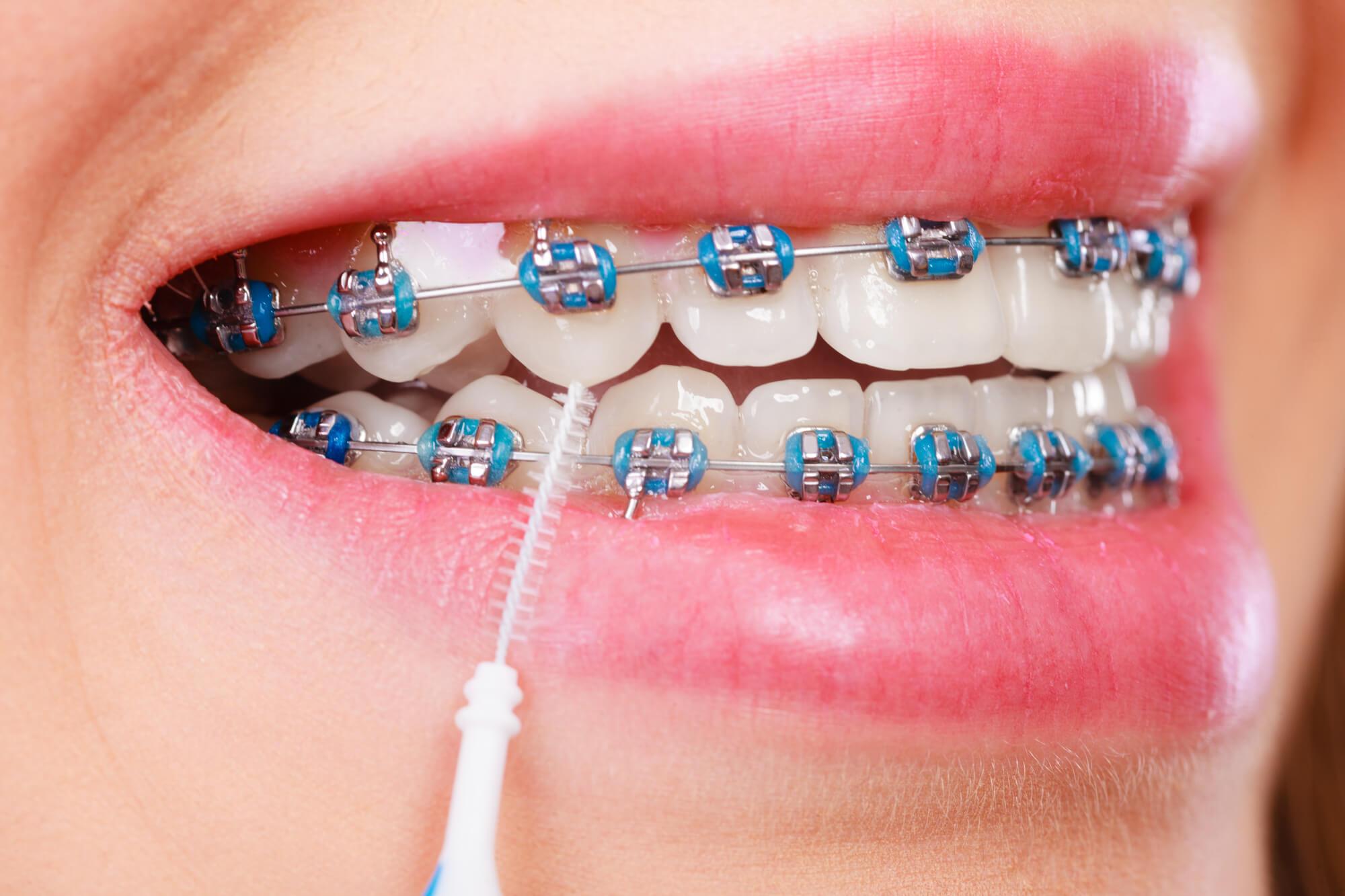 16d33680e 8 dicas de higiene para quem utiliza aparelho ortodôntico fixo - Blog da  Odonto Ágape
