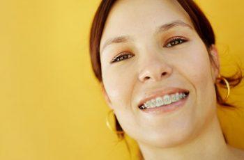 Por que quem usa aparelho dentário não deve perder a consulta?