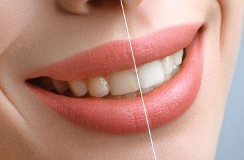 Como realizar estética dental e rejuvenescimento em Belo Horizonte?