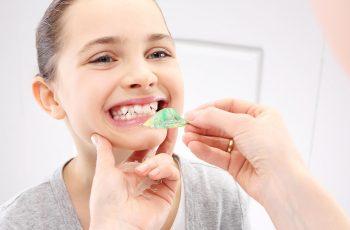 Ortodontia em BH: quando a criança deve colocar aparelho?
