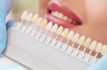 4 novidades para implantes dentários que você precisa saber
