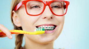 11 dicas de higiene para quem utiliza aparelho ortodôntico fixo